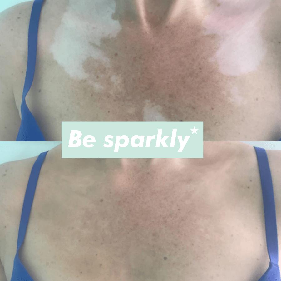 camoufleren vitiligo 6