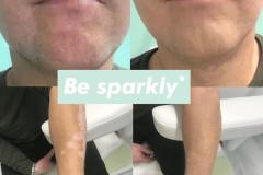 camoufleren vitiligo 3
