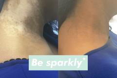 camoufleren vitiligo
